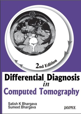 Differential diagnosis of intrasellar tumors by computed tomography