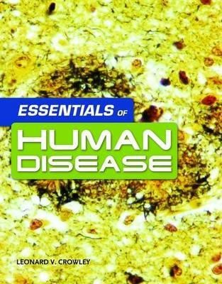 Essentials of Human Disease price comparison at Flipkart, Amazon, Crossword, Uread, Bookadda, Landmark, Homeshop18